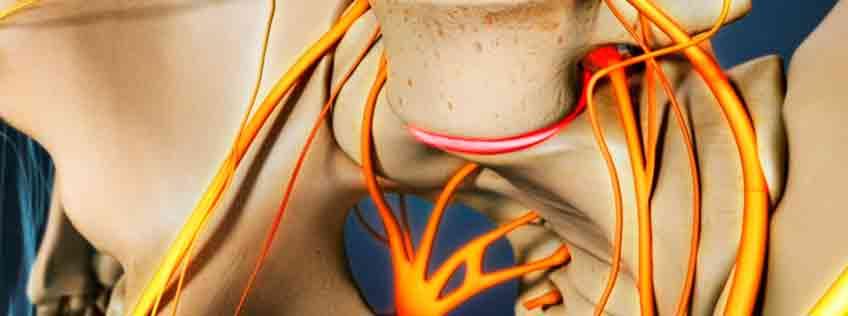 artrodesis doctor Manuel Bordes
