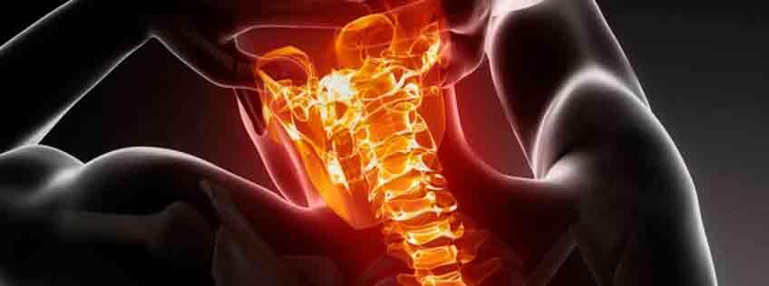 Hernia discal cervical tratamiento